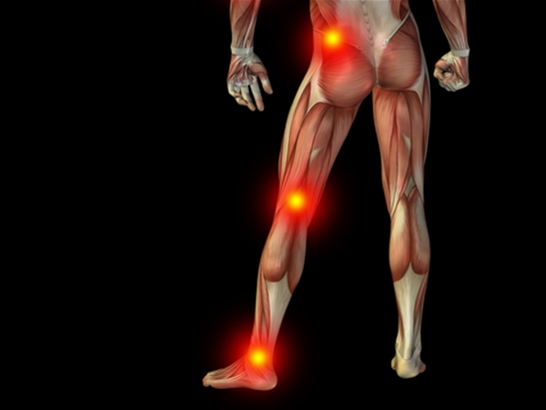The Relationship Between Sciatica Pain and Ergonomics